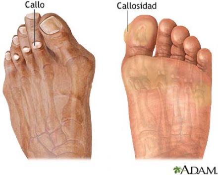 Callosidades - Supercalcetines